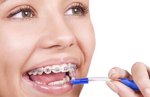 Buena higiene en tu ortodoncia