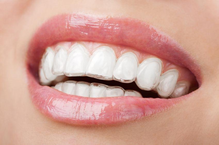 Cómo utilizar el retenedor dental