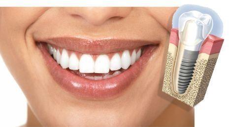 Implantes dentales, reemplazar dientes perdidos