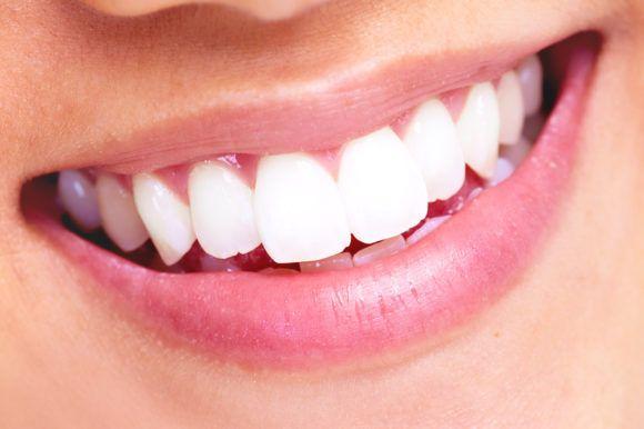 El tratamiento de carillas dentales