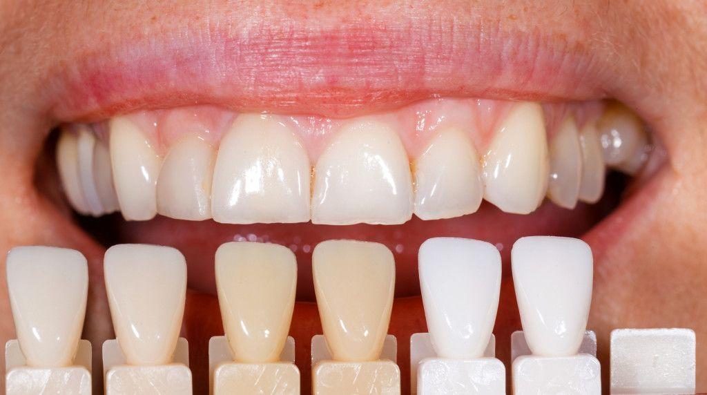 Cómo mantener las carillas dentales