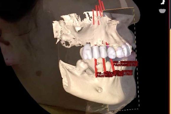 El escáner facial 3D: revolución tecnológica en odontología.