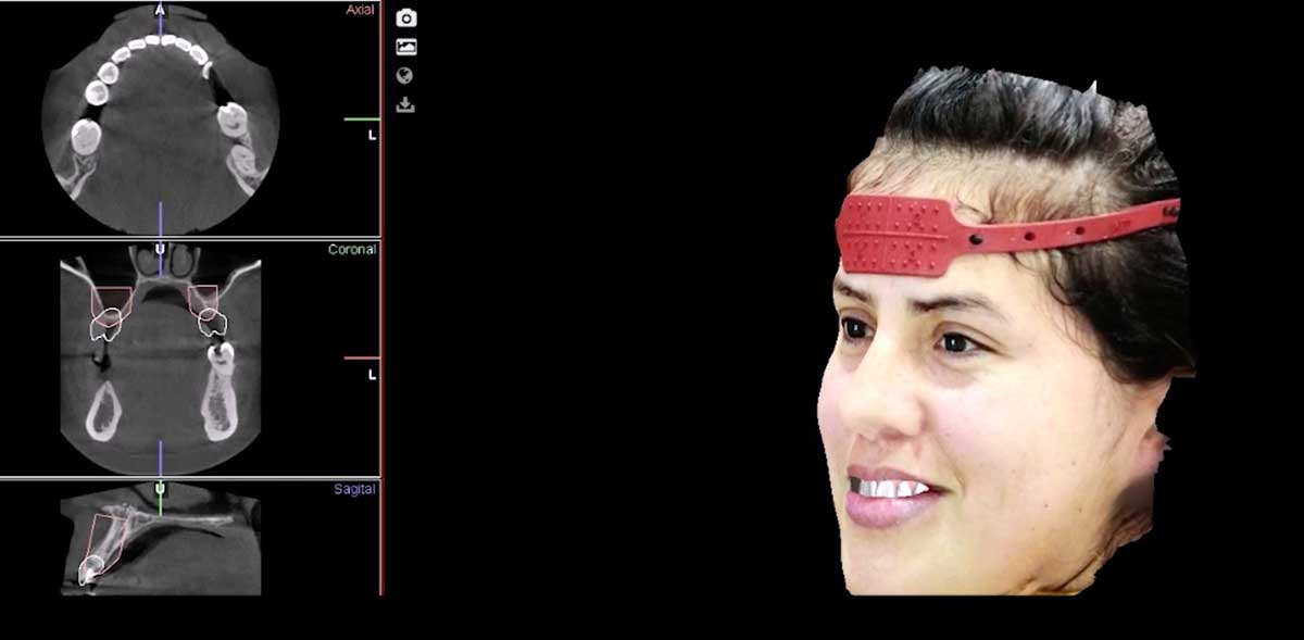 escaner-facial-odontologia