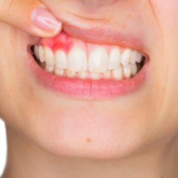 Gingivitis y sensibilidad dental: causas y tratamiento de las enfermedades dentales más usuales