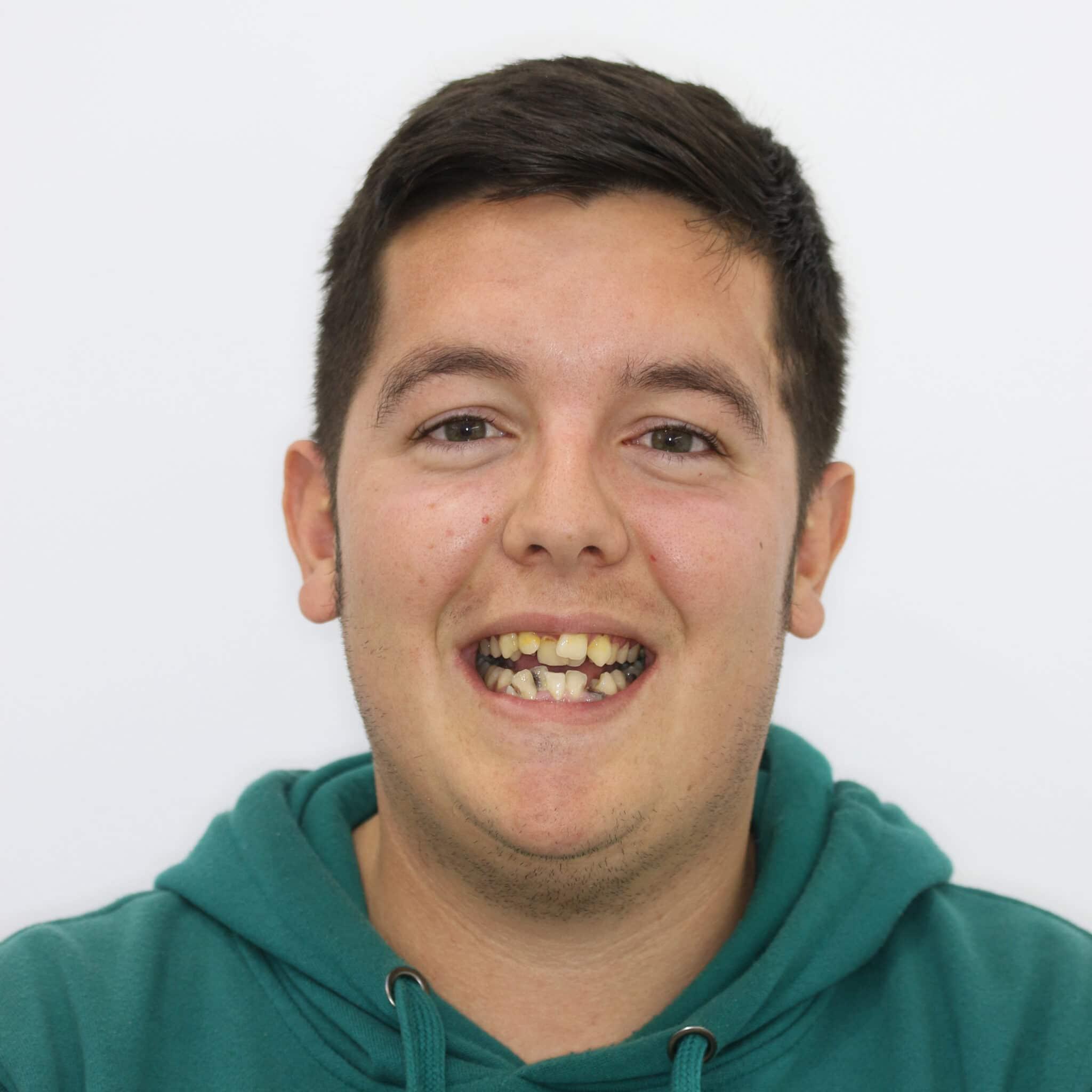 Reconstrucción dental, implantes, ortodoncia y blanqueamiento antes