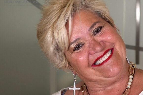 Natividad Hernández. Rehabilitación oral funcional y estética: coronas y coronas sobre implantes