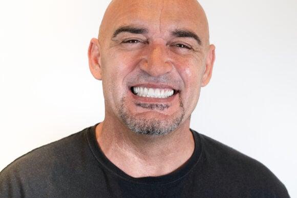 Jose Luis Capote. Rehabilitación oral: implantes y carillas